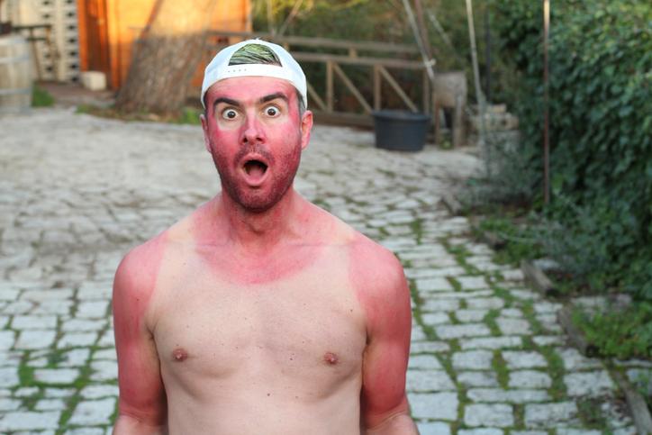 sunburned man